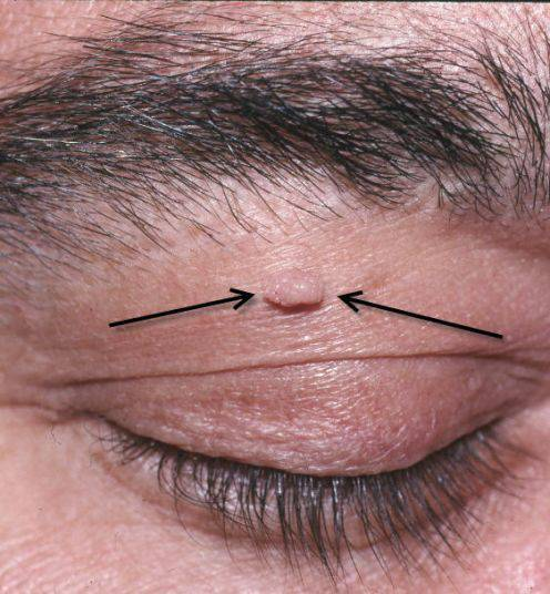 skin tag on eyelids